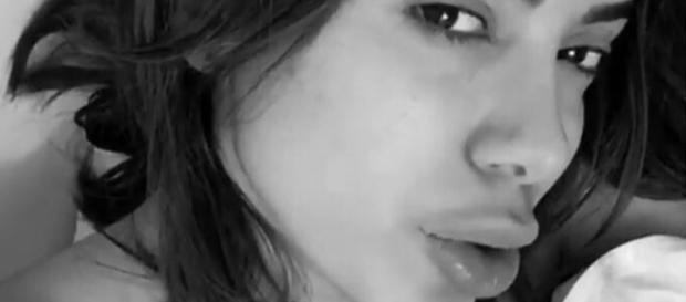 Anitta aparece com lábios inchados em rede social e chama atenção