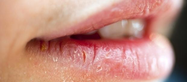 Lábios ressecados podem causar sérias doenças.