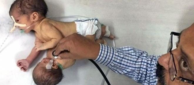Criança nasceu com cabeça e braços do seu irmão parasita