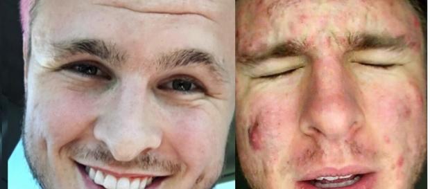 Antes e depois - resultados de dicas contra o acne.