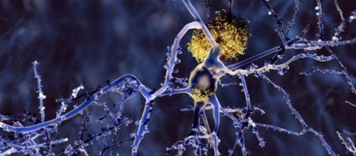 Raffigurazione grafica di placche amiloidi - in giallo - che soffocano un neurone.
