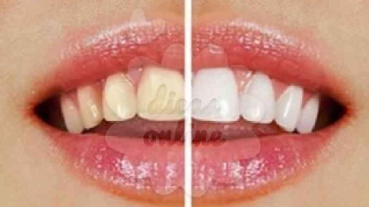 7 Dicas Para Clarear Seus Dentes Em Casa