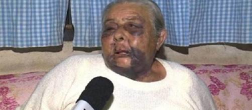 Ela foi encontrada desmaiada e com o rosto desfigurado