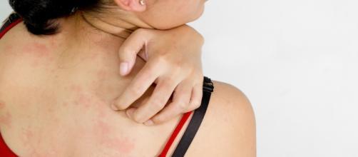 Psoriasi: 6 miti su questa malattia poco conosciuta