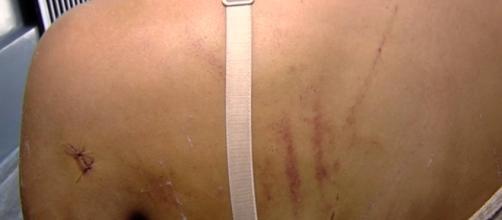 Adolescente é espancada em Goiás - Foto: Reprodução Bomdiabrasil