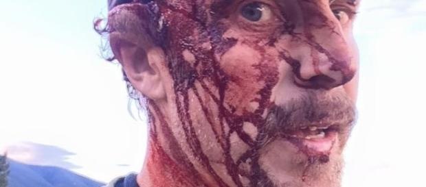 Imagem de homem atacado por urso.