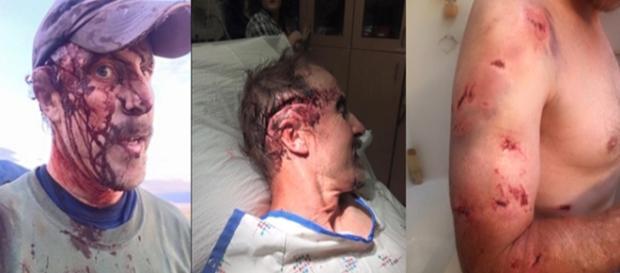 Nas imagens, é possível ver as feridas do homem