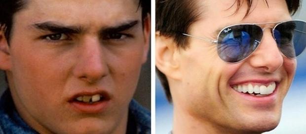 Tom Cruise antes e depois da fama
