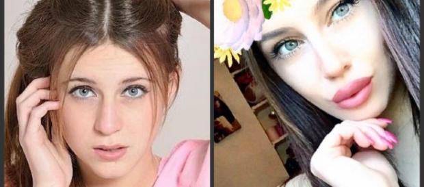 Asia Nuccetelli prima e dopo la chirurgia.