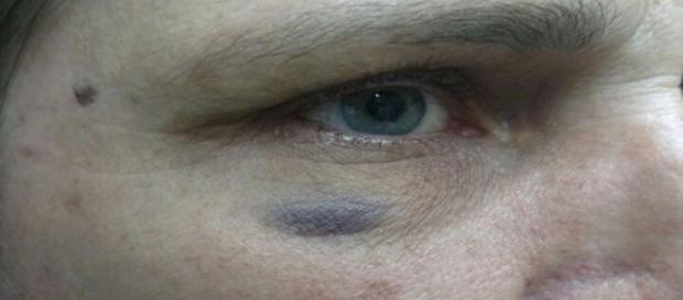 Nas imagens é possível ver as marcas da agressão