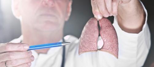 Doctor indicando las localizaciones del cáncer de pulmón