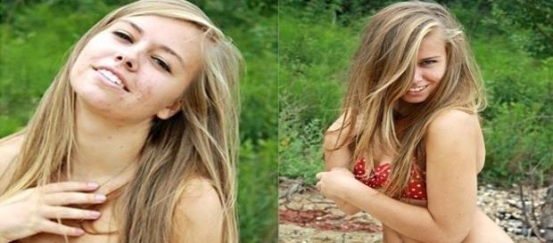 A jovem britânica Jacqui Beck descobriu com 17 anos que não tinha vagina.