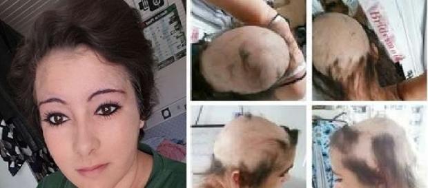 A alopecia faz a pessoa perder os cabelos de repente (Foto: Catraca Livre)
