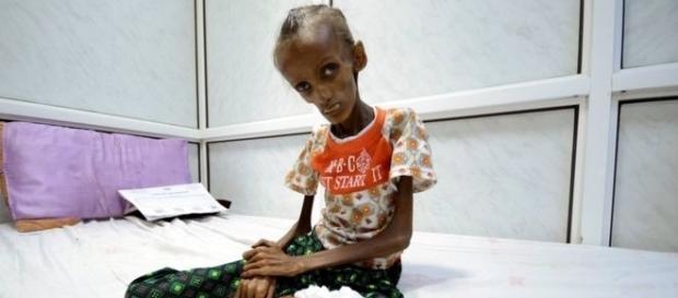 A jovem Saida Ahmad, sentada em uma cama de hospital