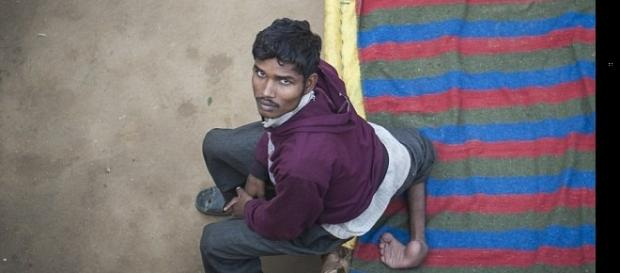 Imagem de indiano diagnosticado com dois pares de pernas