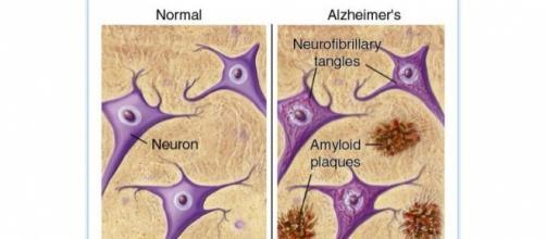 Segni tipici dell'Alzheimer: le placche amiloidi (Amyloid plaques) e gli agglomerati di proteina tau (Neurofibrillary tangles)