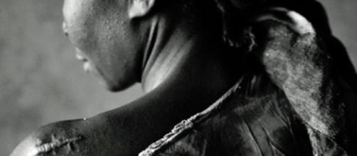Una de las tantas mujeres violadas y mutiladas en la República Democrática del Congo