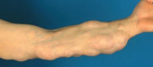 Vários lipomas em braço (imagem de arquivo).