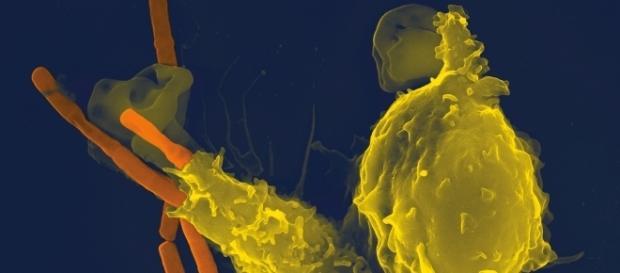 Bacteria resposable de la epidemia ántrax