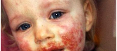 Sienna Duffield se recuperando bem depois de sofrer infeção terrível