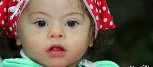 Gli occhi dei bimbi con sindrome di Down - Sindrome di Down ... - guardaconilcuore.org