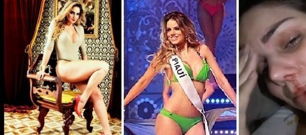 Ex-miss do Piauí sofre agressão de ex e faz um vídeo denunciando o caso.