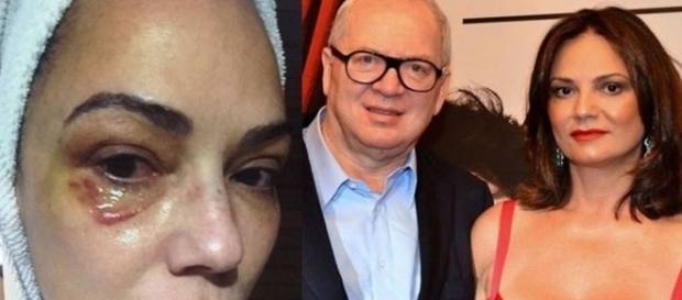 Luiza Brunet e Lírio Parisotto se encontrarão em audiência
