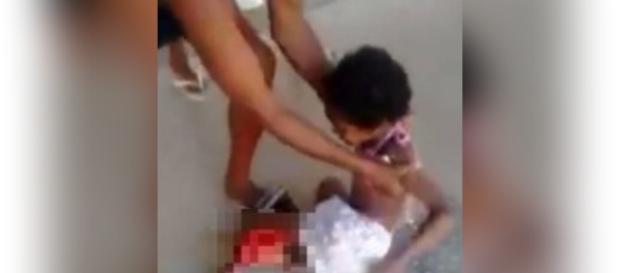 A garotinha teve a perna dilacerada e é mais um acidente envolvendo a BRT