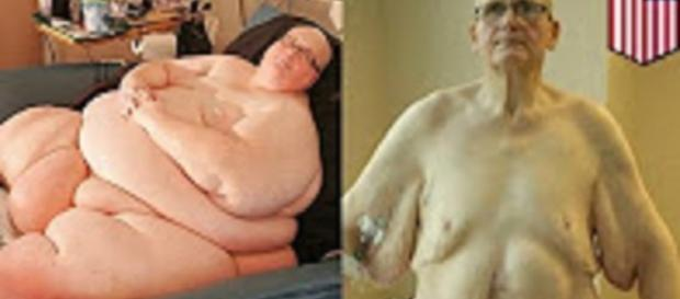 "Source: TomoNews US Youtube ""World's fattest man slims down: the obesity, weight loss and body issues compilation"""