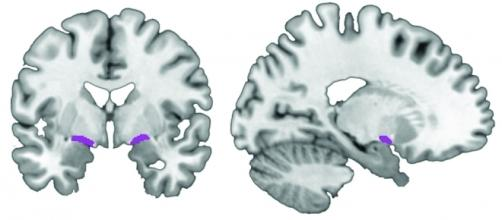 Un'immagine dello studio con il basal forebrain, area da cui prenderebbe origine l'Alzheimer, indicato in viola