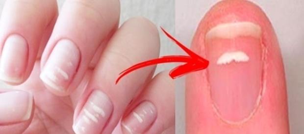 Sinal de alguma doença séria? Descubra tudo sobre as manchas brancas nas unhas