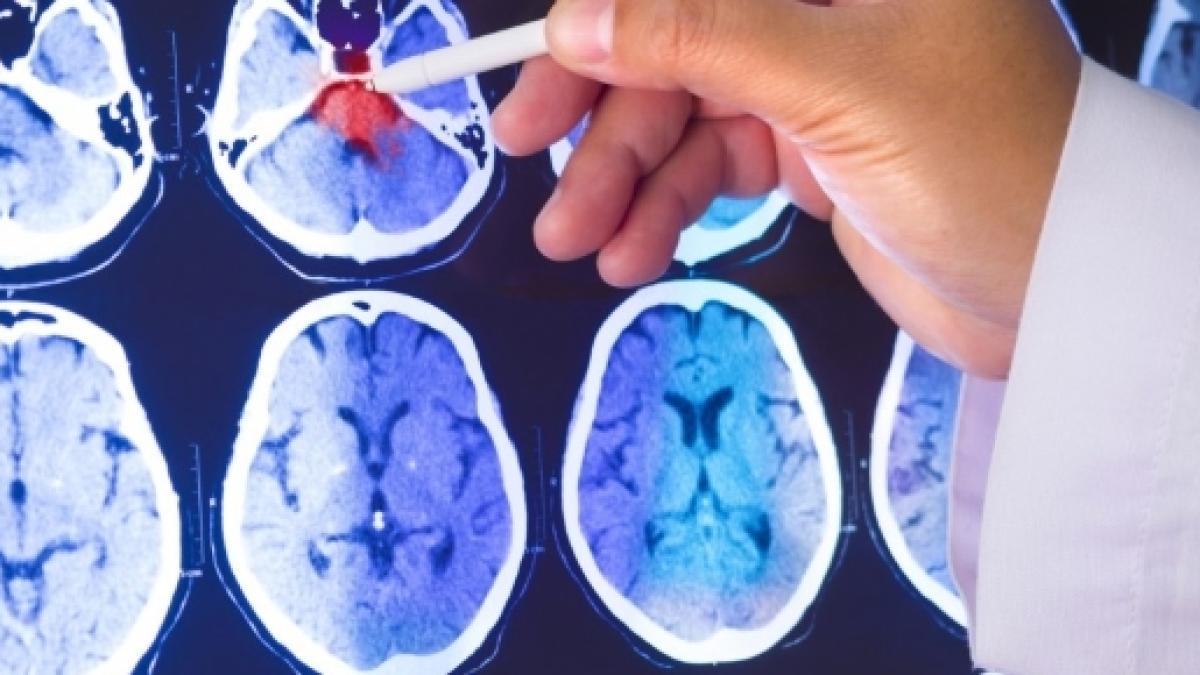 Tutti i sintomi spia di un tumore (che non dovremmo mai sottovalutare)
