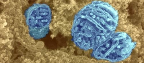 Mitocondri fotografati al microscopio elettronico (Wellcome Trust)