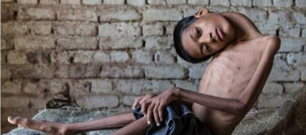 Morte de garoto indiano comove o mundo.