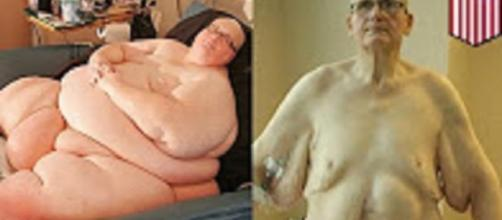 Source: Youtube user TomoNews: World's Fattest Man no more Paul Mason weight loss