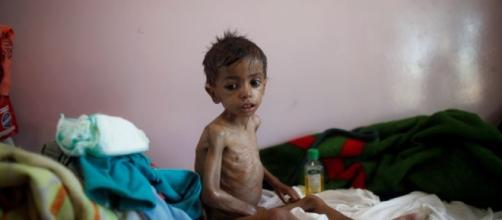 UN Agency: Child Malnutrition at 'All-time High' in Yemen - voanews.com