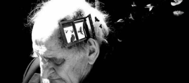 Nerve cell stimulation 'may recall memories' in Alzheimer's patients - com.pk