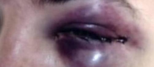 Guarda recebeu golpes no rosto ao tentar apaziguar briga de homem e da esposa delegada