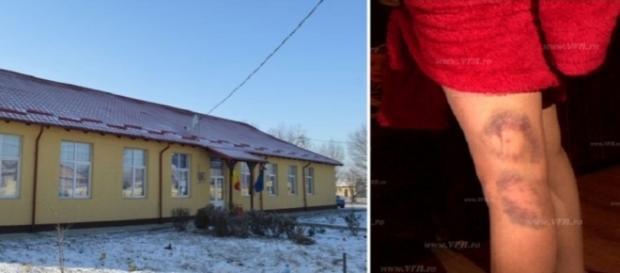 Școala din Todirești și picioarele profesoarei după agresiune