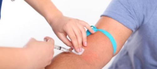 que sintomas causa la sifilis