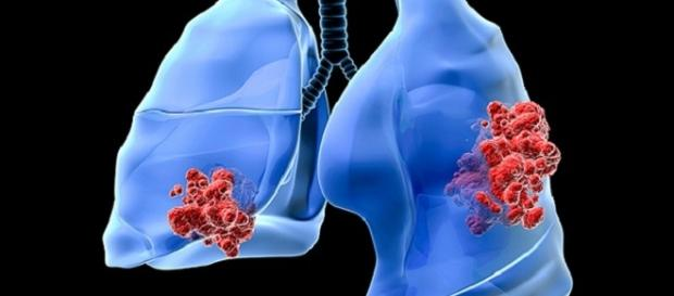Approvati nuovi anticorpi monoclonali anti-PD-L1, efficcaci anche nel cancro al polmone non-a-piccole-cellule (NSCLC).