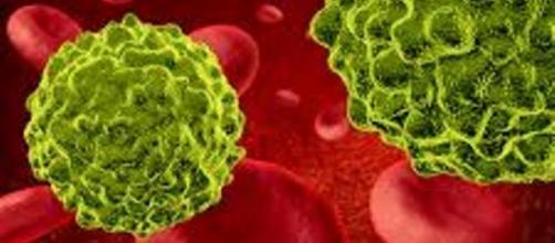 Cellula tumorale nel circolo ematico