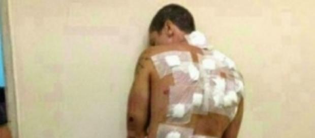Bărbat violat cu PET-uri și cozi de mături