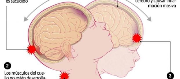 Explicación gráfica del síndrome del bebé sacudido