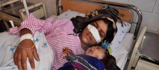 Reza Gul en el hospital después de ser mutilada