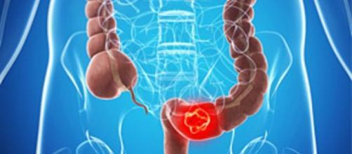 Screening per una diagnosi precoce del tumore