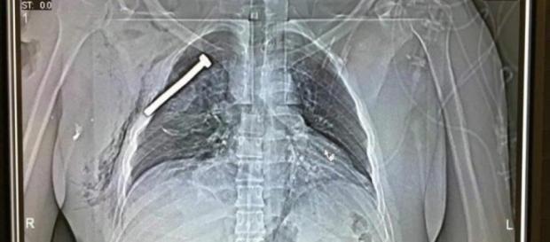 Radiografia di un ferito dopo gli attentati di Bruxelles