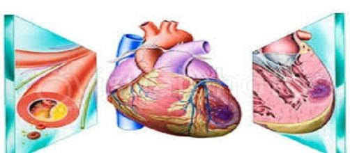 Abbassata l'età media dell'infarto