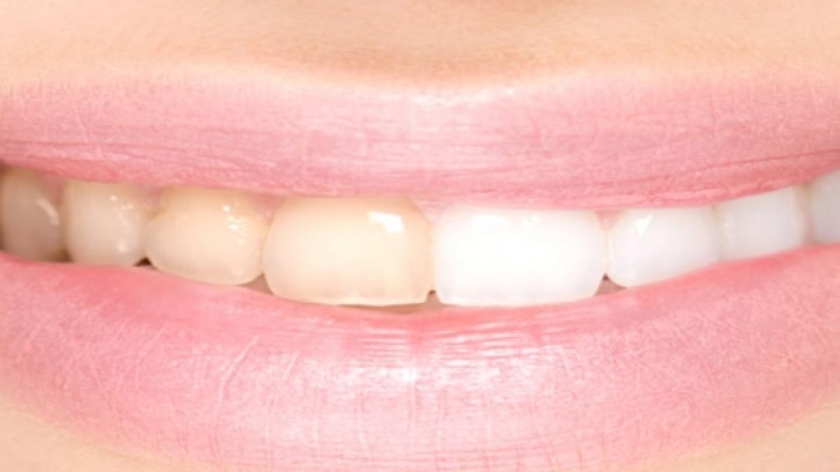 5 homemade tricks to whiten your teeth