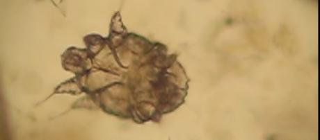 Acaro Sarcoptes Scabei -Il contagio avviene, soprattutto, pelle-pelle, quindi attraverso il contatto